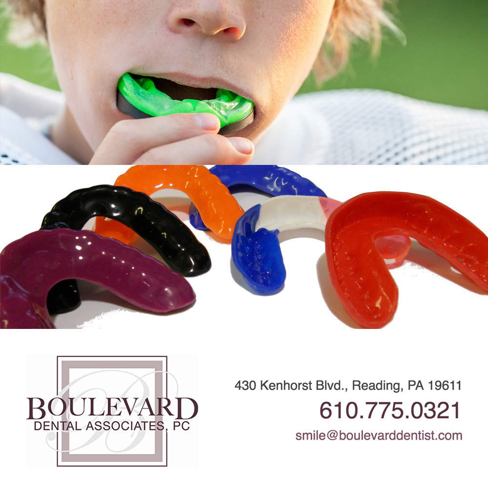 blog3-mouthguard